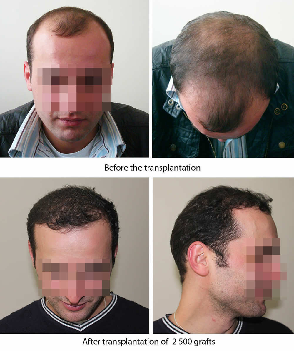 Photo: Before and after transplantation